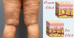 Photo of How to Get Rid of Cellulite on Buttocks and Thigh Fast