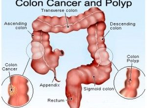 Photo of Colon Cancer: What You Need to Know: Diagnosis and Treatment Options