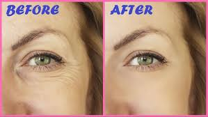 Photo of 6 Healthy Tips On How To Prevent Aging Around The Eyes