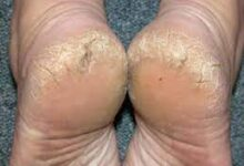 Photo of Home Remedies for Treating Cracked Heels